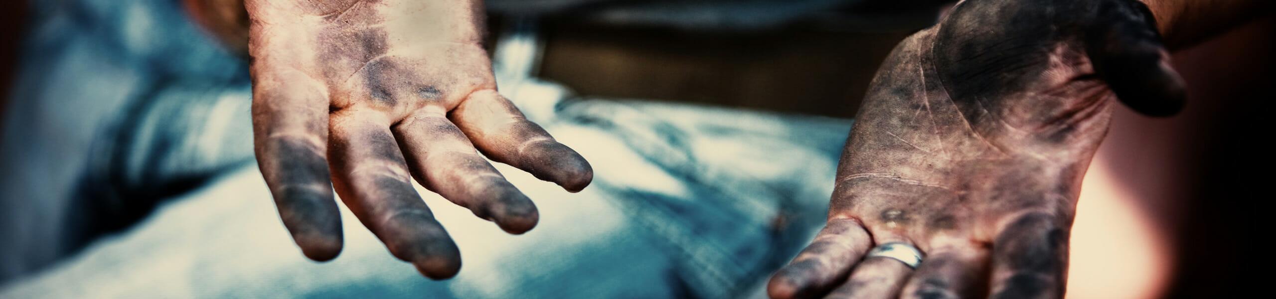 Dieses Foto ist das Titelbild der HelloWorld-Kategorie Engagement und zeigt zwei schmutzige Hände eines Mannes in Jeanshose.